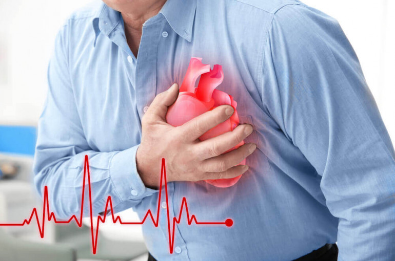 Ինչպես է աճում սրտի կաթվածի ռիսկը երկուշաբթի օրերին