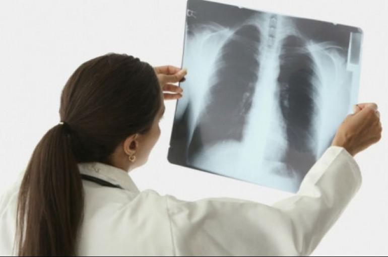 Արդյունավետ միջոց՝թոքերի անբուժելի քաղցկեղի դեմ պայքարի
