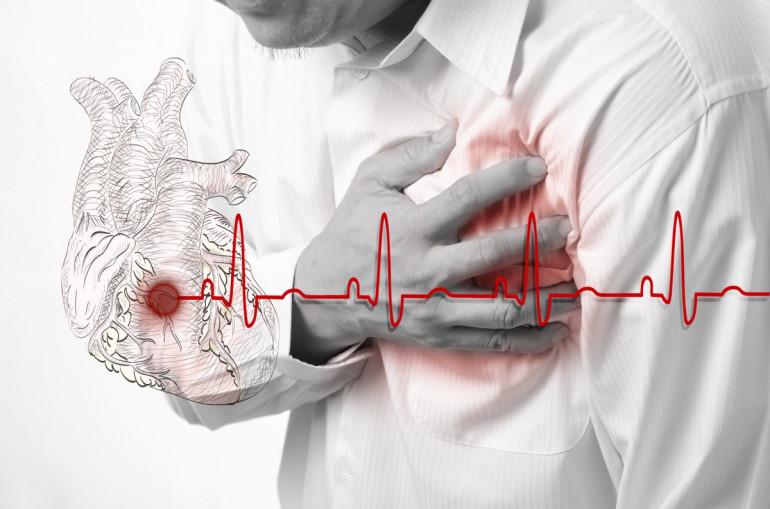 Որոնք են սրտամկանի ինֆարկտի մասին հուշող հիմնական ախտանշանները - Լուրեր  Հայաստանից - Թերթ.am