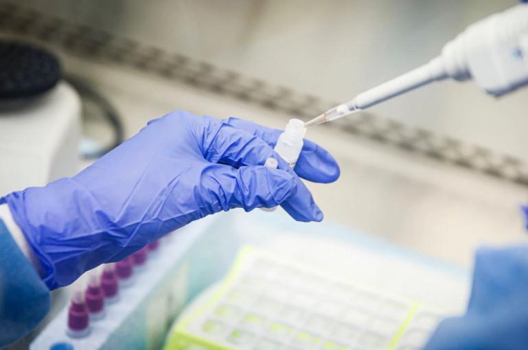 Ստացվել են թեստավորված 31 փորձանմուշի հետազոտության արդյունքները. Արցախում կորոնավիրուսով վարակվածների թիվն ավելացել է