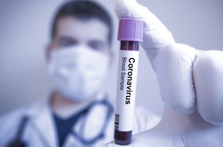 Կորոնավիրուսի վարակման 39 նոր դեպք է գրանցվել. հաստատված դեպքերի թիվը հասավ 329-ի