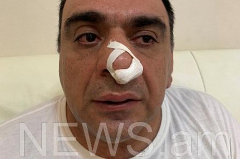 Մոսկվաբնակ գործարարը պնդում է, որ Երևանում Խաչատուր Սուքիասյանի եղբայրն ու թիկնապահն իրեն ծեծի են ենթարկել
