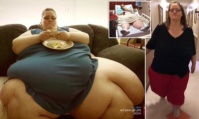 worlds fattest woman loses weight facebook
