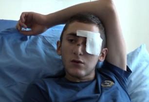 Սարի թաղում աչքը կորցրած Սայադի վիրահատության համար դրամահավաք է սկսվել արտերկրում